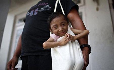 بالصور صور اصغر رجل في العالم ,صور لقذم عجيبه سبحان الله 1573 2