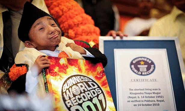 بالصور صور اصغر رجل في العالم ,صور لقذم عجيبه سبحان الله 1573 4
