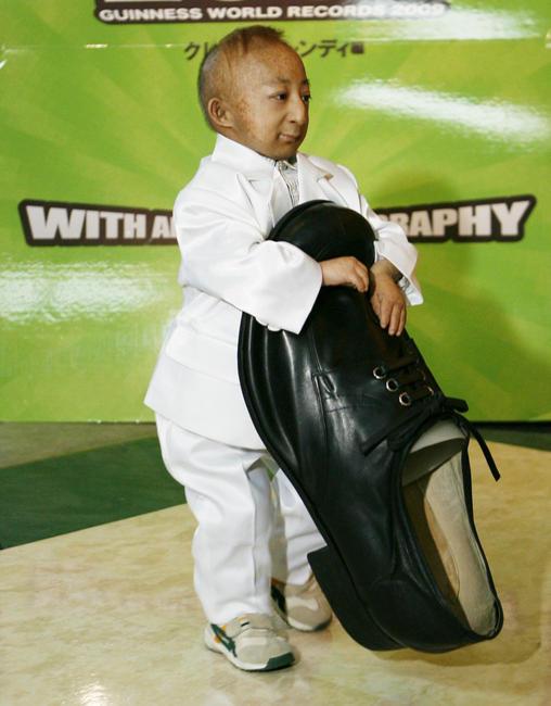 بالصور صور اصغر رجل في العالم ,صور لقذم عجيبه سبحان الله 1573 5
