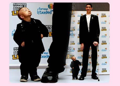 بالصور صور اصغر رجل في العالم ,صور لقذم عجيبه سبحان الله 1573 7