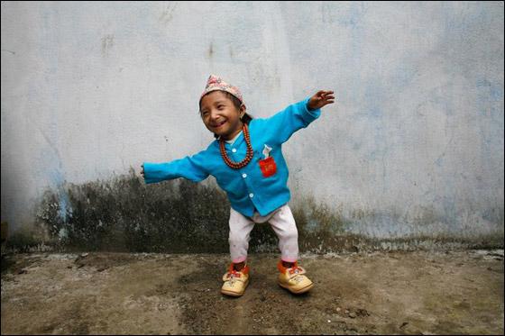 بالصور صور اصغر رجل في العالم ,صور لقذم عجيبه سبحان الله 1573 8
