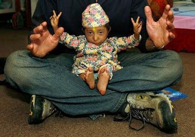 بالصور صور اصغر رجل في العالم ,صور لقذم عجيبه سبحان الله 1573 9