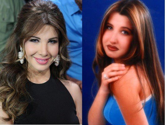 صور نانسي عجرم قبل عمليات التجميل