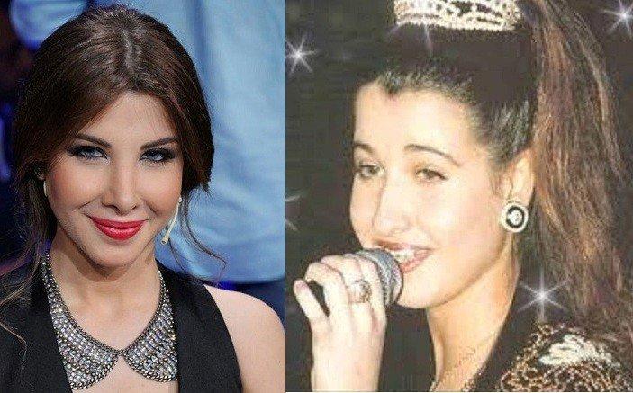 Image result for نانسى عجرم قَبل و بعد