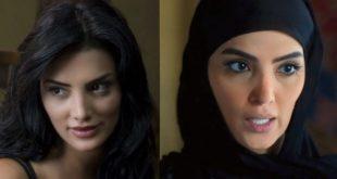 بالصور عمليات التجميل الفاشلة , صور المشاهير ضحايا للاهمال الطبي 2847 10 310x165