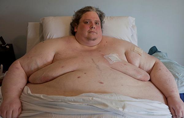 صورة اسمن رجل بالعالم , وفاتة بعد فقدانة نصف وزنة