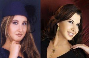صور صور الفنانين قبل وبعد , عملية التجميل اختلفت ملامحهم