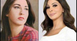 صور عمليات التجميل , اشكال الفنانين قبل العملية تثير سخرية الفيس