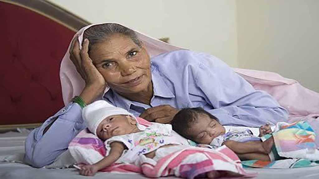 صورة اغرب حالات الولادة في العالم , صورة عجيبة و مذهلة