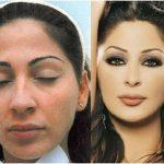 صور اليسا قبل التجميل , شاهد شكل الفنانة قبل اجراء عمليات التجميل