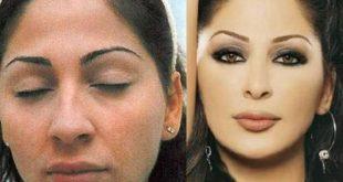صورة صور اليسا قبل التجميل , شاهد شكل الفنانة قبل اجراء عمليات التجميل